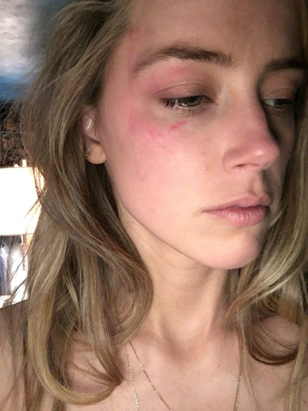 Amber Heard acusa Johnny Depp de agressão e juiz proíbe ator de voltar para casa