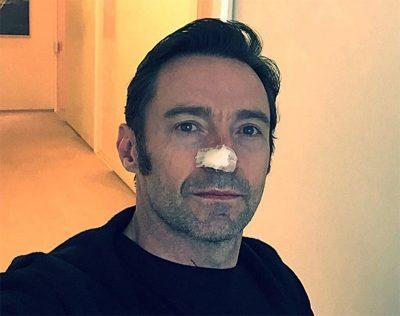 Hugh Jackman revela ter iniciado novo tratamento contra câncer de pele